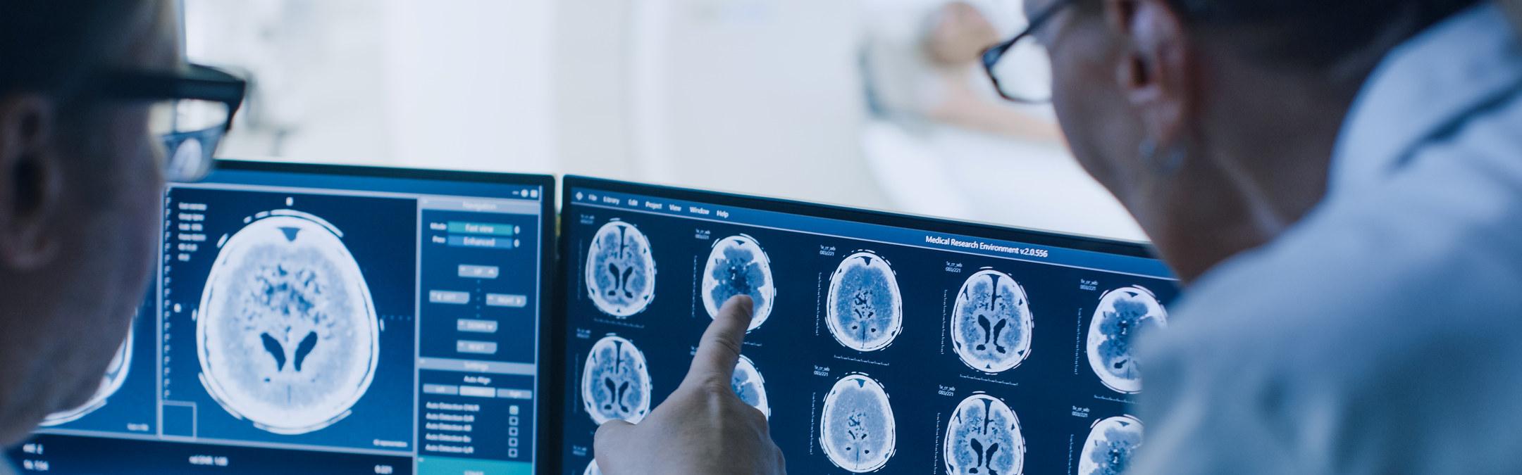 Lege og radiolog diskuterer resultater av hjerneskanninger som de ser på en skjerm.